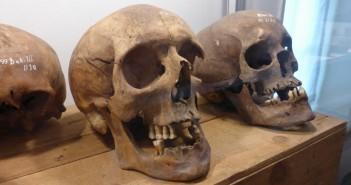 schedels